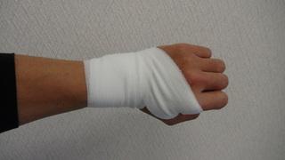 手首の捻挫.JPG
